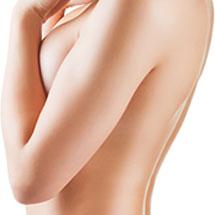 Ridicare sâni, lifting mamar (mastopexie), cu micșorare sau mărire sâni