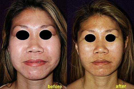 Pacienta de 42 ani, nemultumita de aspectul rotund al fetei, apeleaza la chirurgie estetica de remodelare faciala 3D, liposuctie si lifting facial endoscopic (facelift – midface lift) pentru obtinerea unei fete mai ovale si punerea in tensiune a musculaturii si ligamentelor faciale, cu obtinerea unui aspect mai armonios al fetei, respectand naturalul
