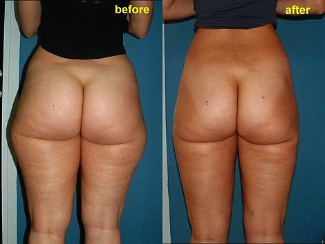 Pacienta de 24 ani, nemultumita de aspectul voluminos si celulitic la nivelul co