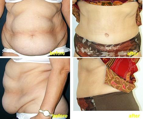 Pacienta de 52 ani, nemultumita de aspectul abdomenului cu un surplus important