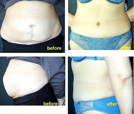 Pacienta de 37 ani, nemultumita de aspectul abdomenului deformat in urma unei in
