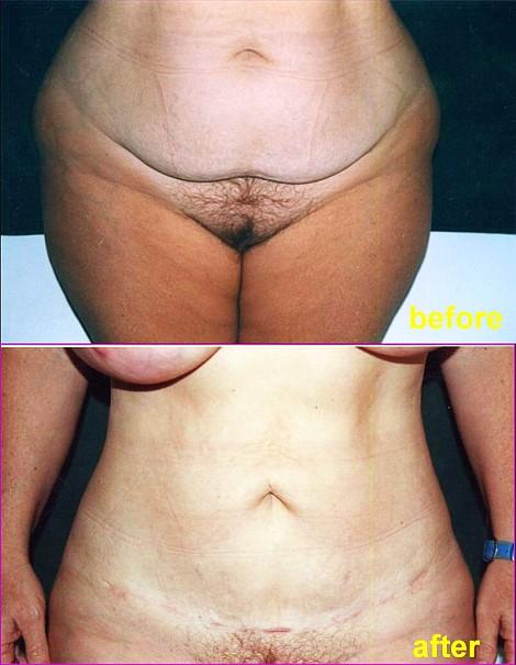 Pacienta de 42 ani, nemultumita de aspectul abdomenului deformat in urma a doua