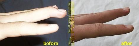 Pacient de 13 ani, prezinta in urma unui accident sportiv o avulsie inchisa de tendon extensor la nivelul falangei distale a degetului mijlociu cu fractura asociata si pozitie vicioasa fara posibilitate de extensie activa la acest nivel (mallet finger – deget in ciocan)