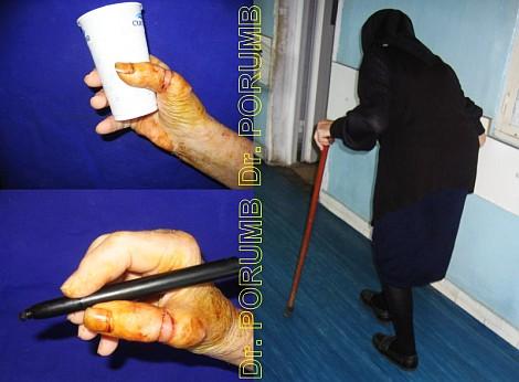 Pacienta de 76 ani, suferind o amputatie traumatica de police mana dreapta, se p