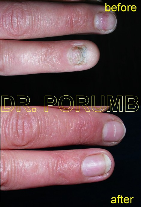 Pacienta de 39 ani, avand unghia si patul unghial de la degetul inelar distruse de o ciuperca, se practica grefa de pat unghial prelevata de la un deget de la picior