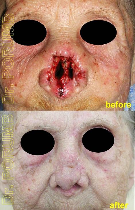 Pacienta de 84 ani, avand o formatiune tumorala maligna la nivelul nasului se pr
