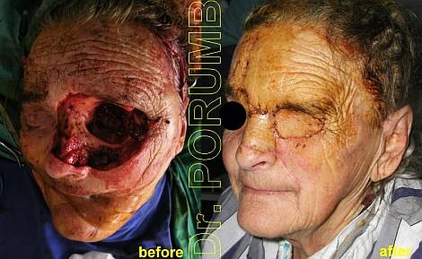 Pacienta de 77 ani , avand o formatiune tumorala maligna neglijata care a invadat ochiul stang, nasul si obrazul stang