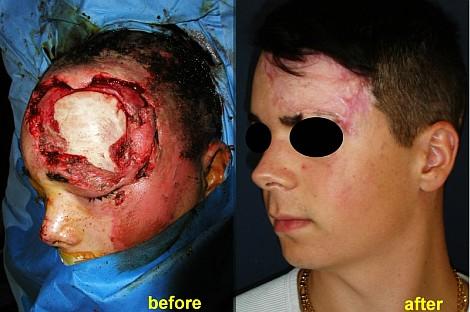 Pacient de 17 ani, suferind un accident de motocicleta, neavand casca de protectie, s-a produs un traumatism cu pierdere extensiva de substanta si expunere osoasa craniana