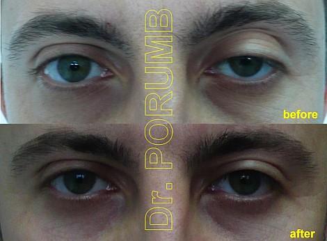 Pacient de 33 ani, nemultumit de aspectul cazut al pleoapei superioare ochi stan