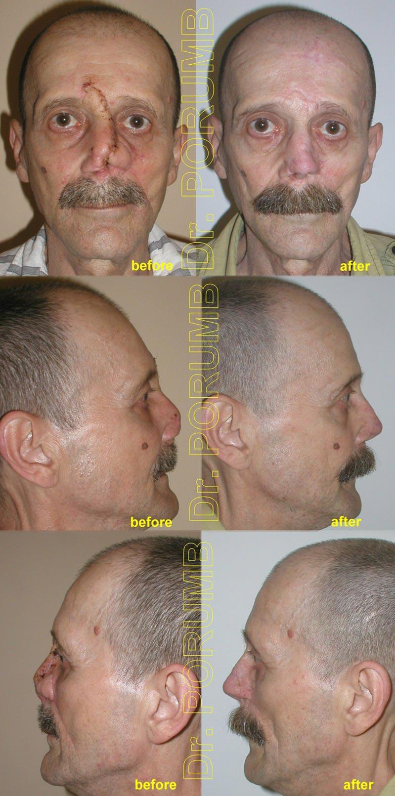 Pacient de 58 ani, in urma unei formatiuni tumorale ramane cu o amputatie partia