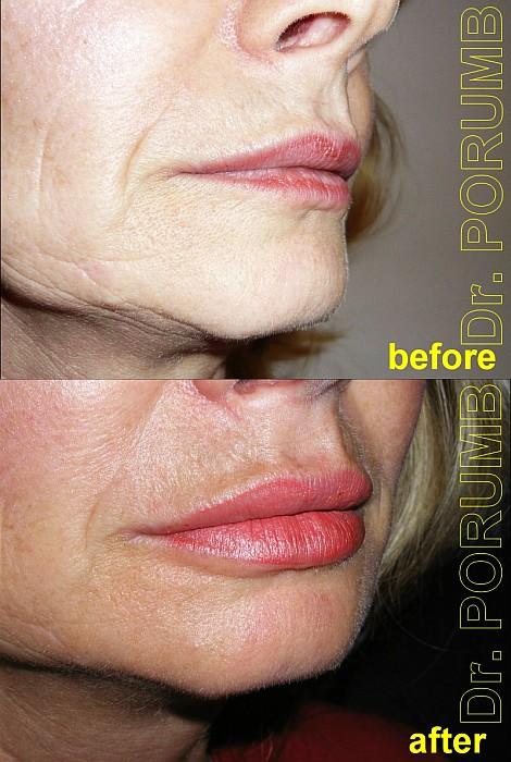 Pacienta de 47 ani, nemultumita de conturul si forma buzelor, apeleaza la chirurgie estetica de remodelare buze cu acid hialuronic