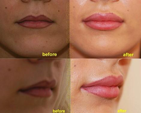 Pacienta de 22 ani, nemultumita de conturul, forma si volumul insuficient al buzelor, apeleaza la chirurgie estetica de marire buze cu acid hialuronic