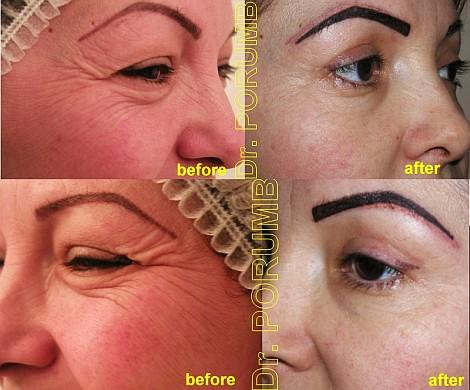 Pacienta de 37 ani, nemultumita de privirea obosita, de surplusul de piele de la pleoapa superioara si coltul ochilor, si de incretirea semnificativa a pielii din coltul ochilor (laba gastii), apeleaza la chirurgie estetica de blefaroplastie a pleoapei superioare si tratament antirid