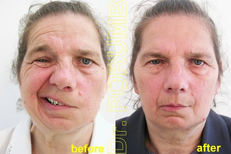 Pacienta de 56 ani, afectata de o hemipareza faciala stanga de cauza necunoscuta