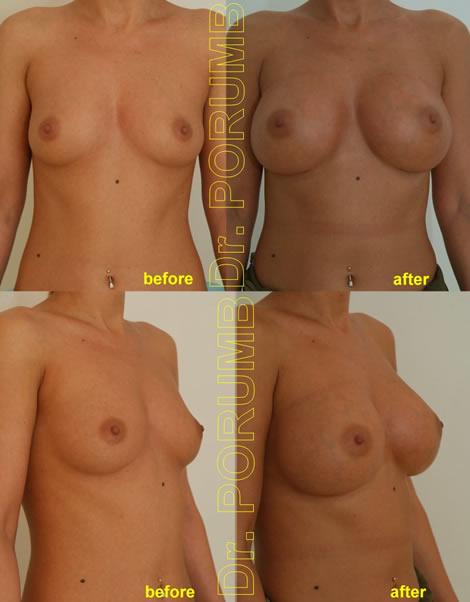 Pacienta de 33 de ani, doreste sa apeleze la chirurgie estetica pentru o operatie estetica de marire de sani (implant mamar), pentru apropiere sani si o mai buna umplere a polului superior