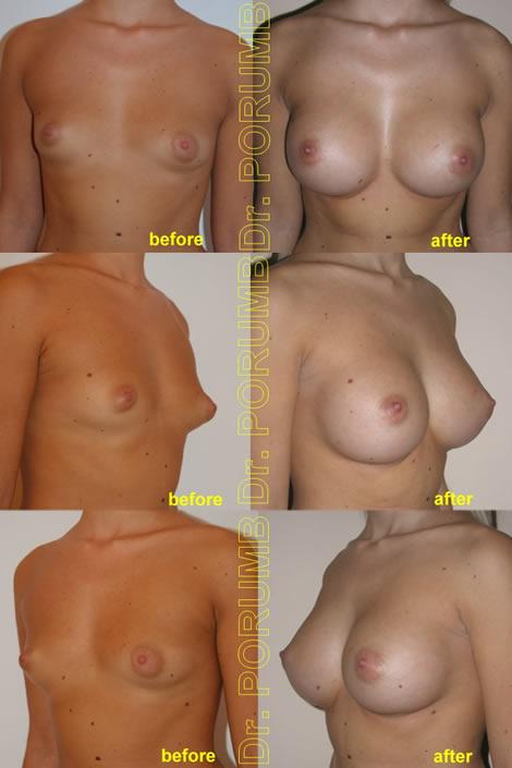 Pacienta de 23 de ani, cu o asimetrie mamara evidenta si san tuberos, doreste sa apeleze la chirurgie estetica pentru o operatie estetica de marire de sani (implant mamar), simetrizare, si corectie san tuberos