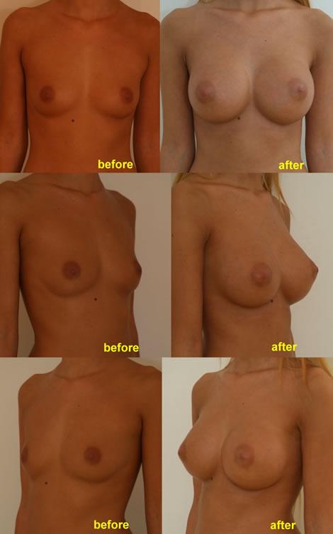 Pacienta de 21 de ani, doreste sa apeleze la chirurgie estetica pentru o operatie estetica de marire de sani (implant mamar), pentru apropiere sani si o mai buna umplere a polului superior