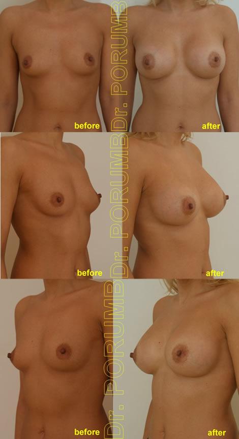 Pacienta de 38 de ani, doreste sa apeleze la chirurgie estetica pentru o operatie estetica de marire de sani (implant mamar), pentru apropiere sani si o mai buna umplere a polului superior, dar si pentru un rezultat foarte natural