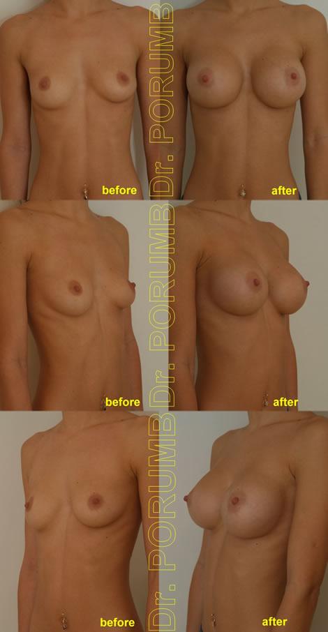 Pacienta de 26 de ani, doreste sa apeleze la chirurgie estetica pentru o operatie estetica de marire de sani (implant mamar), pentru apropiere sani si o mai buna umplere a polului superior