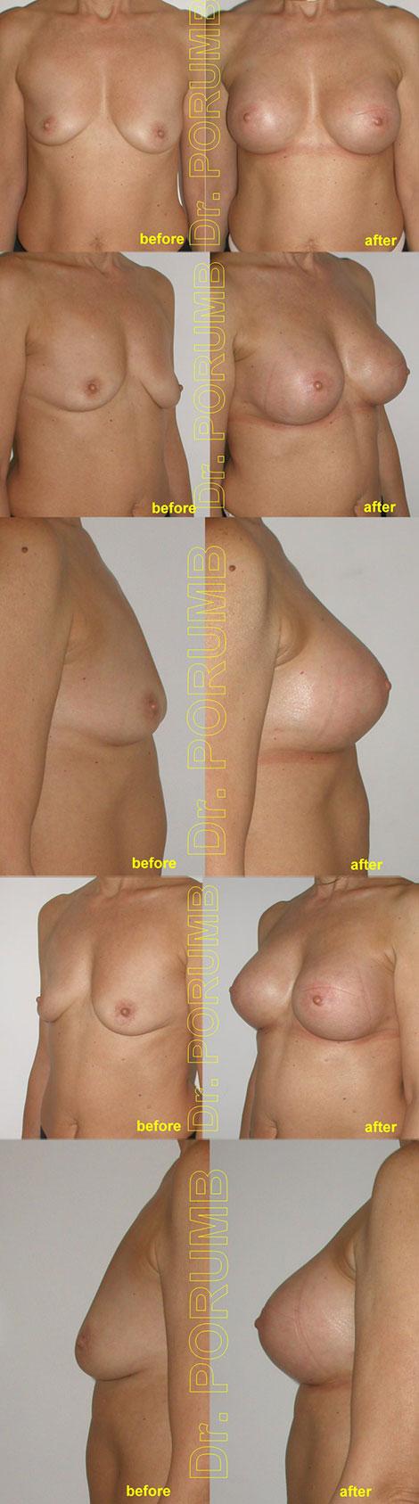 Pacienta de 54 ani, doreste sa apeleze la interventia de augmentare mamara pentru o operatie estetica de marire de sani (silicoane), pentru apropiere sani, mai buna simetrizare, dar si obtinerea unor sani armoniosi, naturali