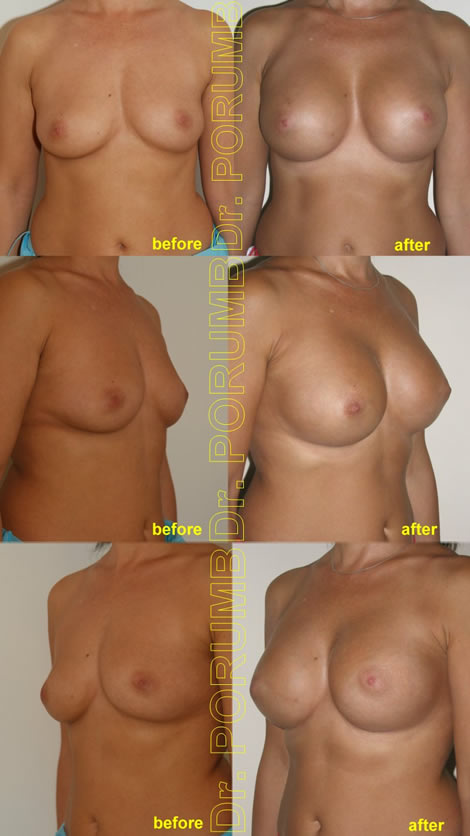 Pacienta de 40 de ani, doreste sa apeleze la chirurgie estetica pentru o operatie estetica de marire de sani (implant mamar), pentru apropiere sani si o mai buna umplere a polului superior, dar si pentru un rezultat foarte natural
