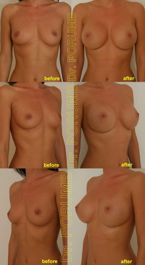 Pacienta de 28 de ani, doreste sa apeleze la chirurgie estetica pentru o operatie estetica de marire de sani (implant mamar), pentru apropiere sani si o mai buna umplere a polului superior
