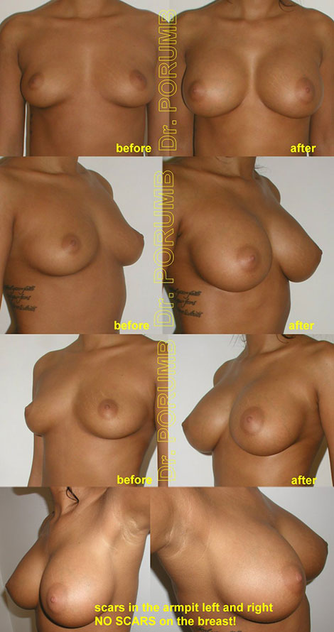 Pacienta de 23 ani, doreste sa apeleze la interventia de augmentare mamara pentru o operatie estetica de marire de sani (silicoane), pentru apropiere sani dar si obtinerea unor sani armoniosi, naturali