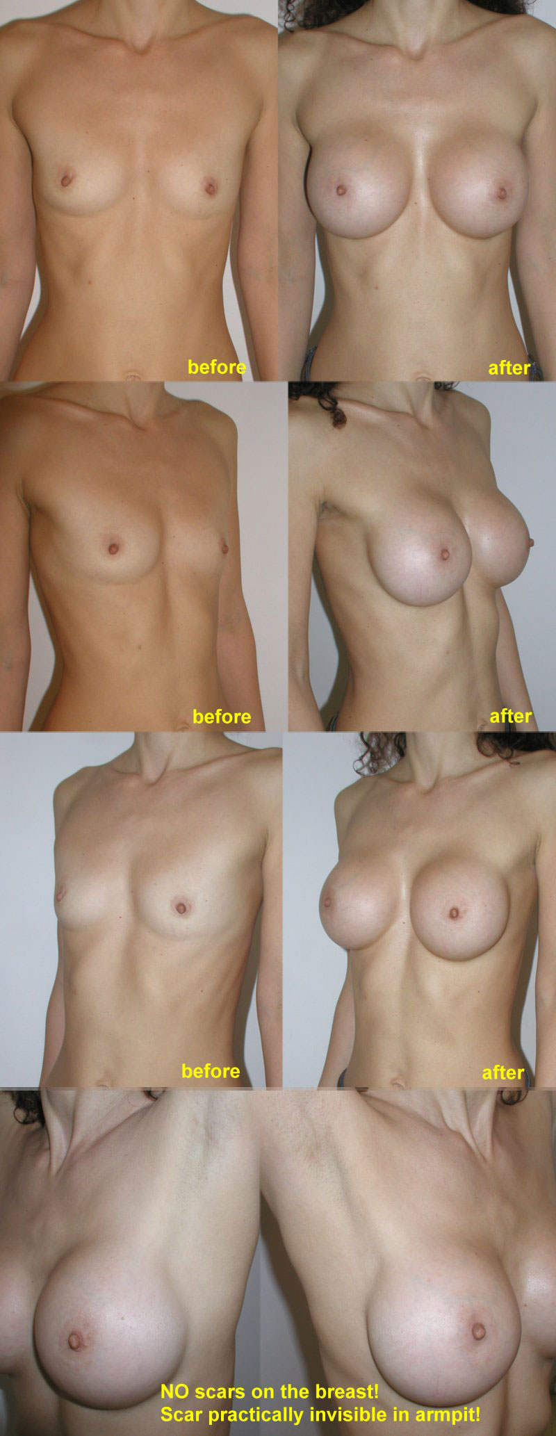 Pacienta de 36 ani, doreste sa recurga la interventia de augmentare mamara pentru o operatie estetica de marire de sani (silicoane), pentru apropiere sani dar si obtinerea unor sani armoniosi, naturali