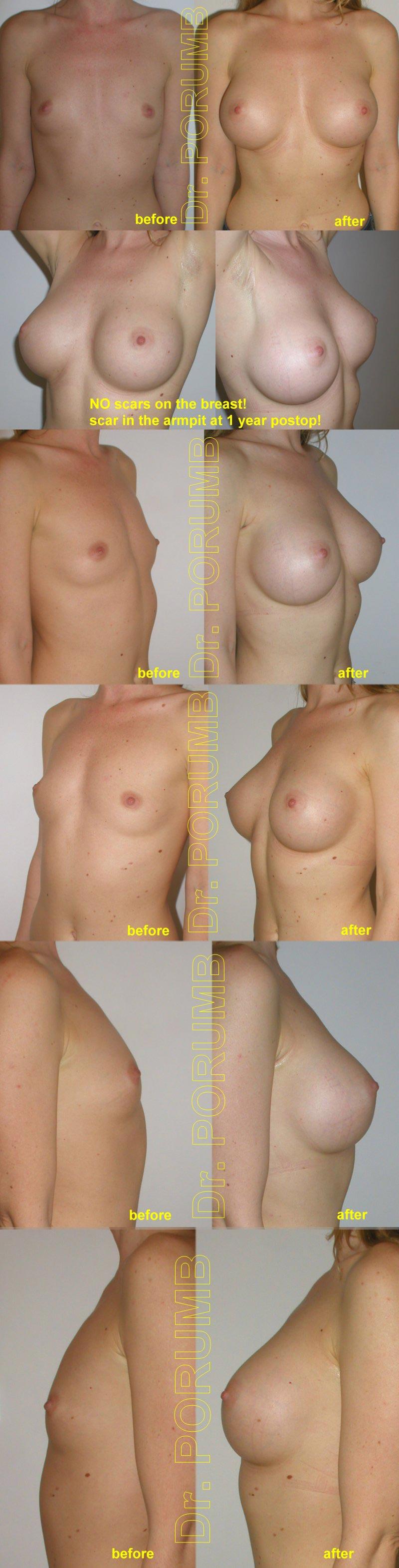 Pacienta de 32 ani, doreste sa apeleze la interventia de augmentare mamara pentru o operatie estetica de marire de sani (silicoane), pentru apropiere sani dar si obtinerea unor sani armoniosi, naturali