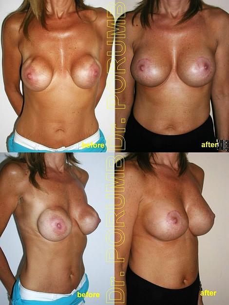 Pacienta de 41 ani, operata deja anterior la o alta clinica, alt chirurg, nemultumita de aspectul nenatural, foarte departat al sanilor, ondularea suprafetei sanilor si volum insuficient cu caderea sanilor, doreste sa apeleze la chirurgie estetica pentru o operatie estetica de marire de sani ( schimbare silicoane), pentru apropiere sani, ridicare sani (mastopexie – lifting mamar) si obtinerea unor sani armoniosi, naturali mai plini