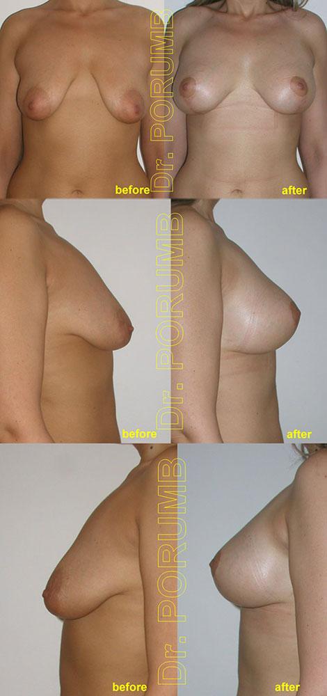 Pacienta de 29 de ani, nemultumita de insuficienta volumului sanilor si aspectul lasat al acestora, doreste sa apeleze la chirurgia estetica pentru o operatie de marirea sanilor (silicoane) concomitent cu operatia de ridicarea sanilor (mastopexie sau lifting mamar)