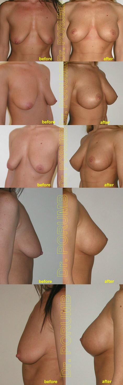 Pacienta de 25 de ani, nemultumita de insuficienta volumului sanilor si aspectul lasat al acestora, doreste sa apeleze la chirurgia estetica pentru o operatie de marirea sanilor (silicoane) concomitent cu operatia de ridicarea sanilor (mastopexie sau lifting mamar)