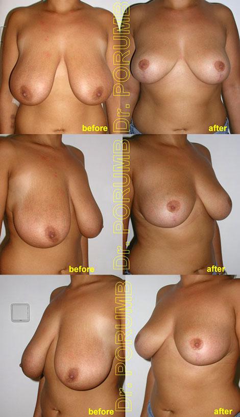 Pacienta de 23 ani, este nemultumita de aspectul foarte cazut al sanilor, cu asimetrie si cu o jena psihologica si vestimentara importanta, doreste sa apeleze la chirurgie estetica pentru operatia de ridicare sani (mastopexie – lifting mamar) fara implant mamar! Pacienta foarte multumita de rezultatul acestei operatii estetice, cu disparitia jenei psihologice si vestimentare