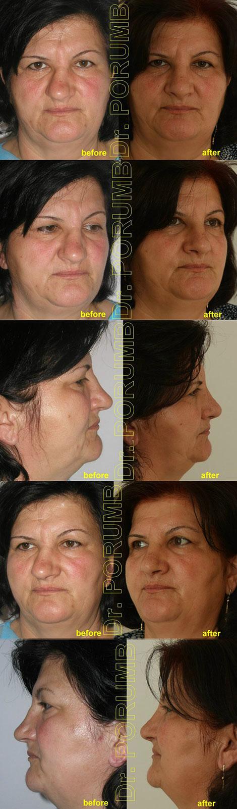 Pacienta in varsta de 52 de ani, prezentand un traumatism vechi nazal cu strambarea si infundarea nasului intr-o parte, deformarea majora a narilor, deviatie de sept si deviatie de nas (nas stramb) cu dificultati respiratorii majore