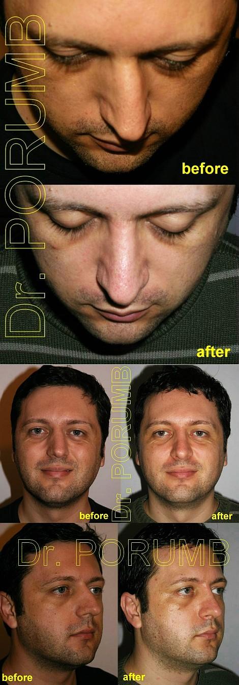 Pacient de 31 ani, nemultumit de aspectul estetic al nasului, avand si o deviatie de sept si nazala foarte importanta, cu jena respiratorie si senzatie de sufocare in timpul noptii prezentand un colaps de valva externa, doreste sa apeleze la chirurgie estetica de rinoplastie (operatie estetica nas) cu indepartarea discreta a cocoasei, corectia deviatiei nazale si a septului, corectia colapsului de valva externa, discreta ridicare si subtiere a nasului cu scurtarea discreta in lungime cu simetrizarea nasului