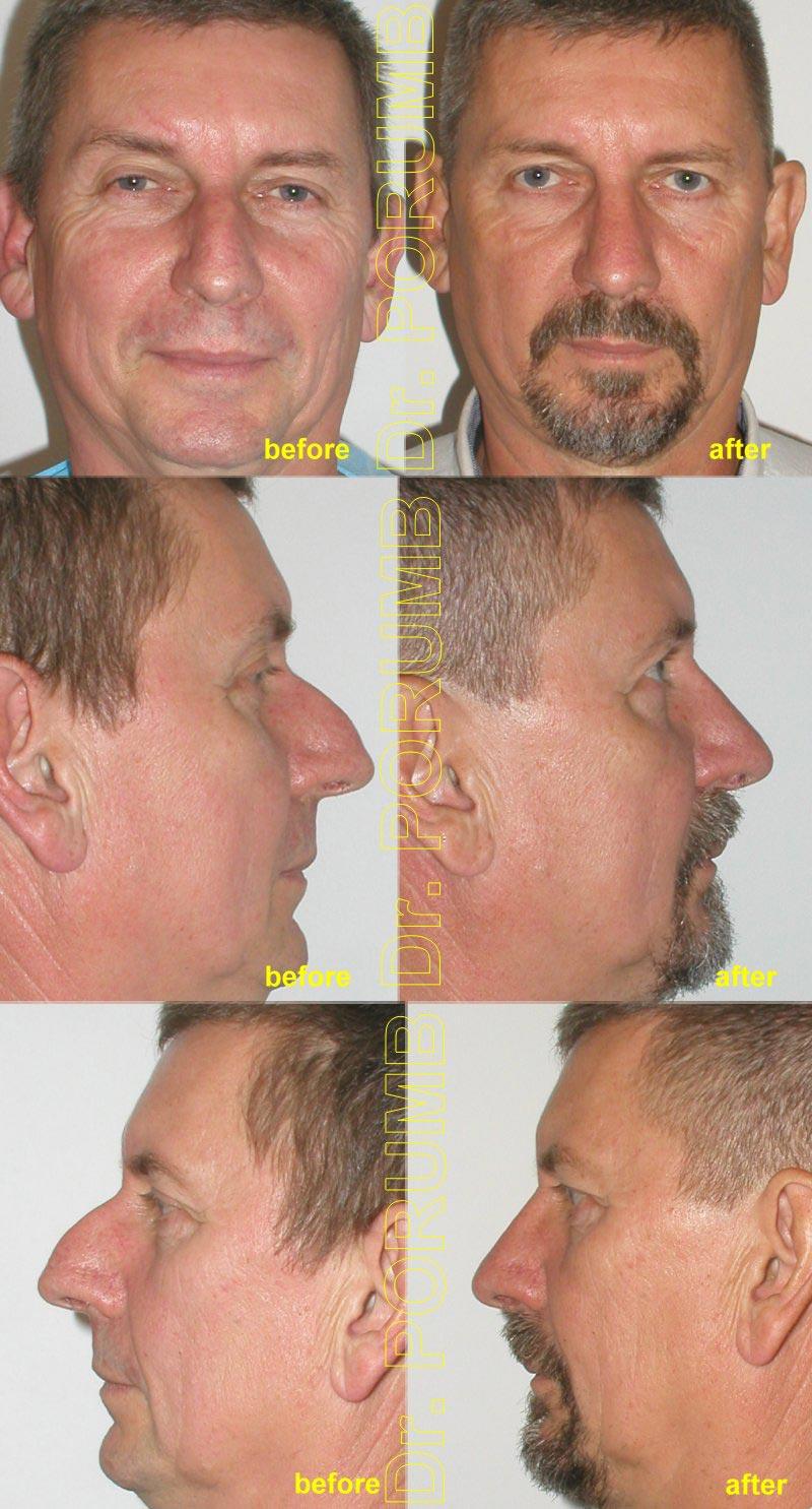 Pacient in varsta de 54 de ani, nemultumit de marimea nasului, de lungimea si proiectia in exces, dar si de dificultati respiratorii, doreste sa apeleze la o interventie de rinoplastie (modelare nas, operatie la nas) si septoplastie pentru corectia deviatiei de sept, micsorarea nasului, scurtarea nasului si indreptarea nasului