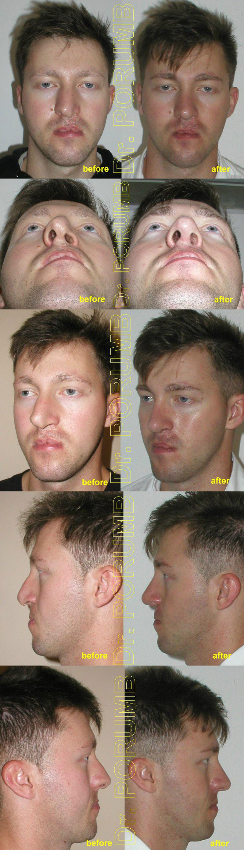 Pacient in varsta de 22 ani