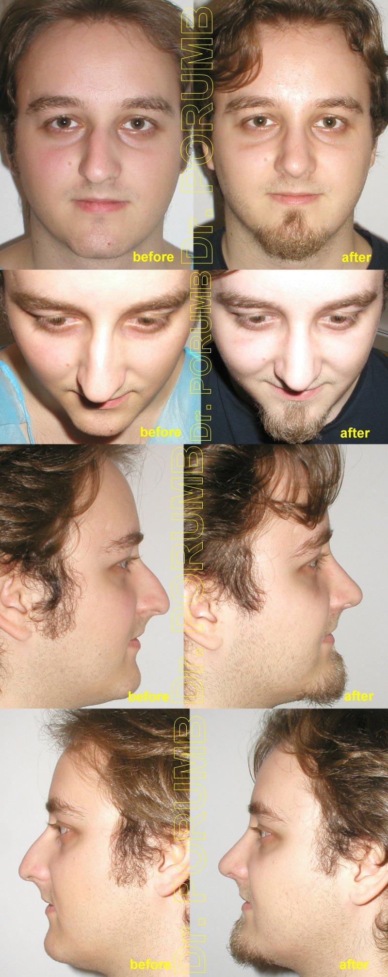 Pacient in varsta de 23 de ani, nemultumit de aspectul deviat, stramb si inclinat al nasului, precum si de marimea acestuia, de lungimea si proiectia in exces, dar si de dificultati respiratorii, doreste sa apeleze la o interventie de rinoplastie (modelare nas, operatie la nas) si septoplastie pentru corectia deviatiei de sept, micsorarea nasului, scurtarea nasului si indreptarea nasului