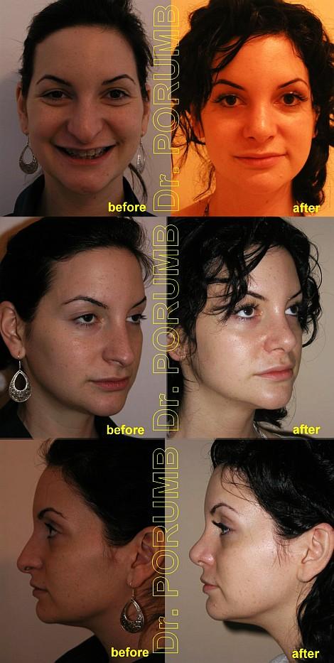 Pacienta de 24 ani, nemultumita de aspectul estetic al nasului, doreste sa apeleze la chirurgie estetica de rinoplastie (operatie estetica nas) cu ridicare a varfului nasului si ameliorarea proiectiei acestuia, scurtarea in lungime si modificarea formei narilor