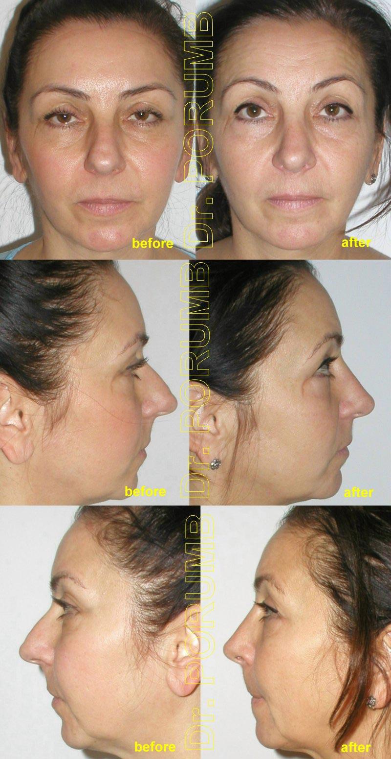 Pacienta de 49 ani, nemultumita de marimea nasului, cocoasa dar si de deviatia de sept si dificultati respiratorii, doreste sa apeleze la chirurgie estetica de rinoplastie (operatie estetica nas), cu corectia deviatiei de sept si deviatiei de nas, indepartarea cocoasei si micsorarea nasului, ridicarea varfului nasului, scurtarea nasului, subtierea nasului, subtierea varfului nasului