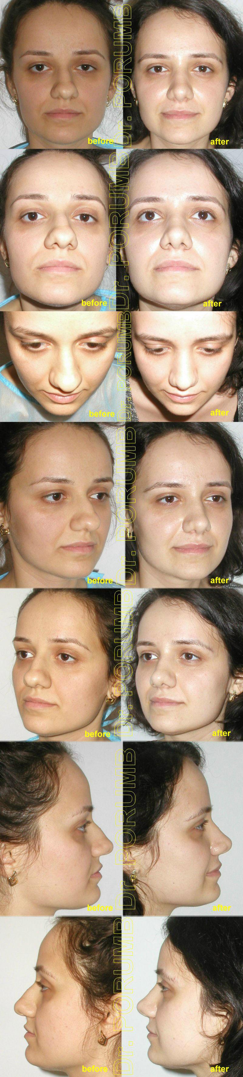 Pacienta de 26 ani, nemultumita de deviatia majora a nasului, de deviatia de sept si dificultati respiratorii, de marimea nasului, doreste sa apeleze la chirurgie estetica de rinoplastie (operatie la nas), cu corectia deviatiei de sept si deviatiei de nas, indepartarea cocoasei, micsorarea si subtierea varfului nasului nasului