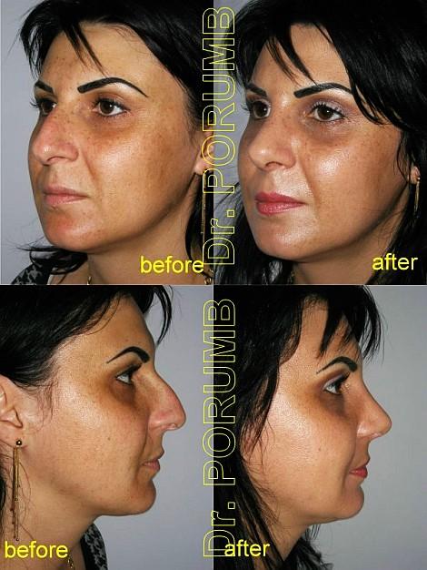 Pacienta de 30 ani, nemultumita de aspectul estetic acvilin al nasului doreste sa apeleze la chirurgie estetica de rinoplastie (operatie estetica nas) cu micsorare nas, indepartarea cocoasei, si discreta ridicare si subtiere a nasului cu scurtarea in lungime, ameliorarea proiectiei varfului nasului