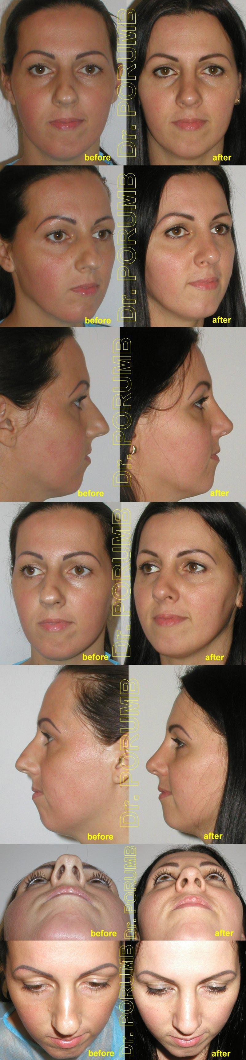 Pacienta de 34 ani, nemultumita de aspectul estetic al nasului, de marimea