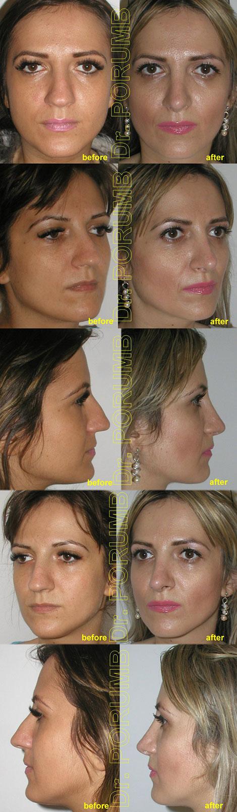 Pacienta de 27 ani, nemultumita de aspectul estetic al nasului, suferind si un t