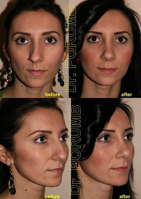Pacienta de 25 ani, nemultumita de aspectul estetic al nasului, avand si o deviatie de sept si asimetrie importanta, doreste sa apeleze la chirurgie estetica de rinoplastie (operatie estetica nas) cu micsorare nas, indepartarea cocoasei, subtierea nasului si discreta ridicare si subtiere a varfului nasului cu scurtarea in lungime, corectia deviatiei nasului Pacienta este foarte multumita de rezultatul acestei operatii estetice, concomitent practicandu-se si o interventie de otoplastie secundara de corectie pentru urechi departate operate initial in alta parte