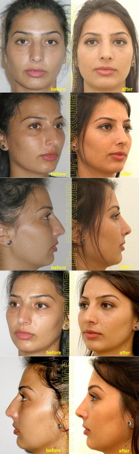 Pacienta de 28 ani, nemultumita de aspectul nasului, de cocoasa nasului, doreste