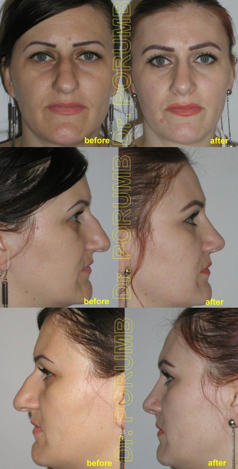 Pacienta de 36 ani, nemultumita de aspectul estetic al nasului, de marimea