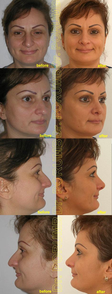 Pacienta de 41 ani, nemultumita de aspectul estetic al nasului, de marimea nasul