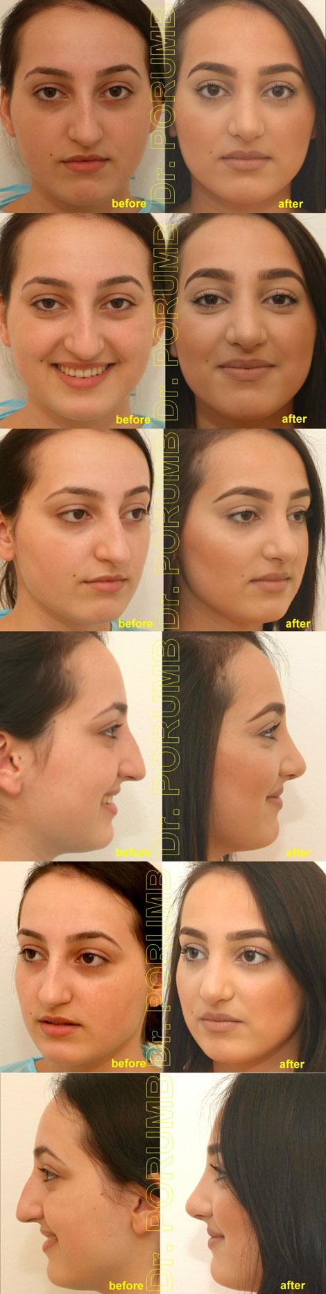 Pacienta de 33 ani, nemultumita de aspectul estetic al nasului, de marimea nasul