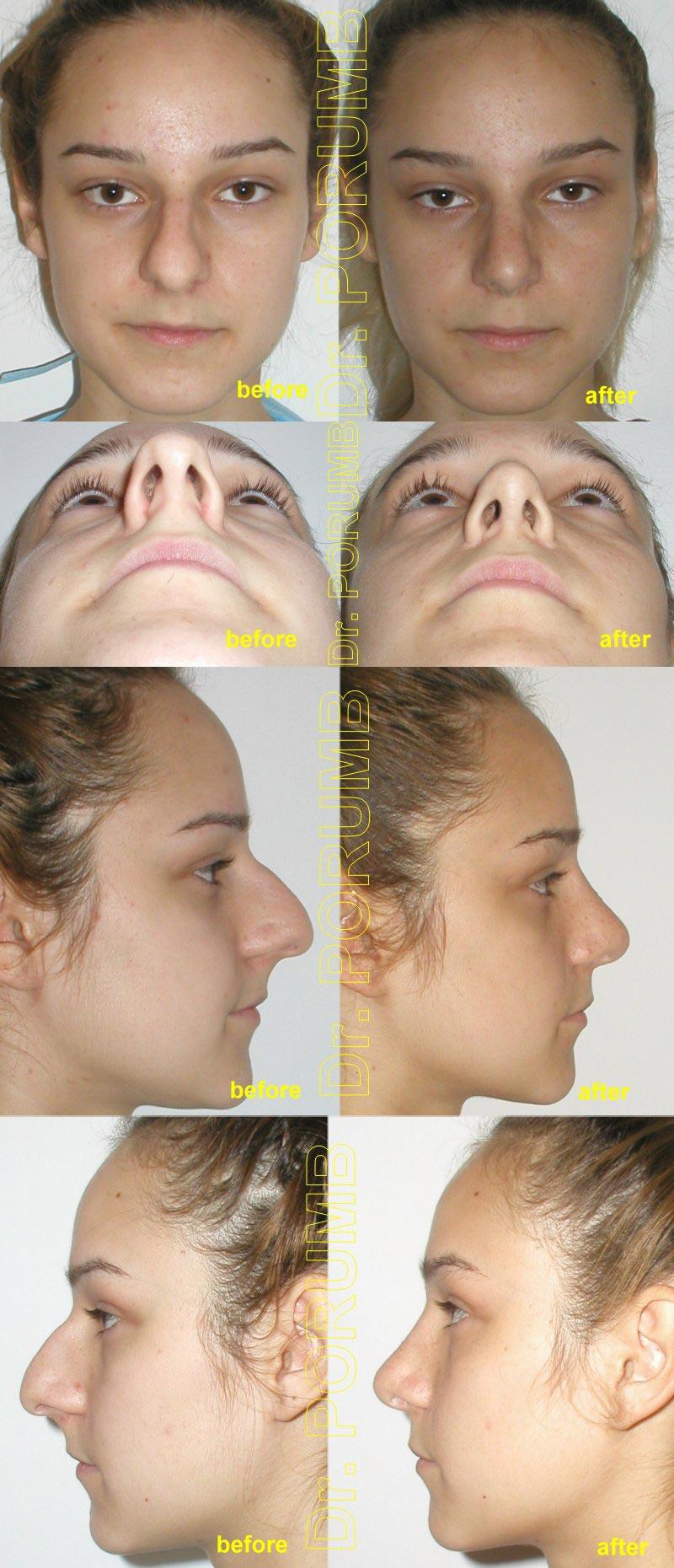 Pacienta de 16 ani, nemultumita de marimea nasului de deviatia nasului, de devia